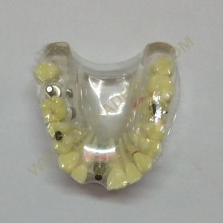 OSA-2008A dental implant models with caries / teeth model / denture model / dental model / dental handpiece / dental chair unit
