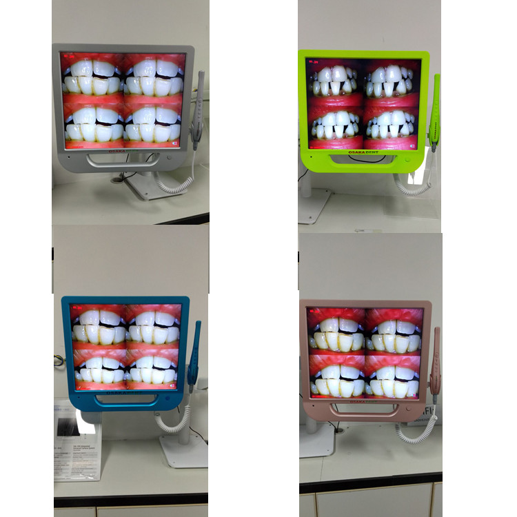 A 17 inch Colorful Monitor Dental Intraoral Camera with VGA&VIDEO&USB & WIFI including monitor holder