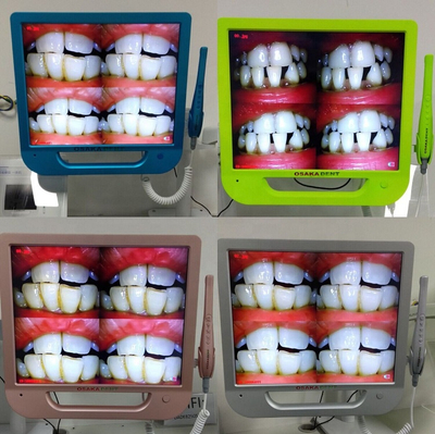Colourful 17inch monitor +Wifi Dental Intraoral Camera with VGA+VIDEO+US B +monitor holder